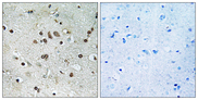 BTF3L4 Antibody - Immunohistochemistry analysis of paraffin-embedded human brain tissue, using BTF3L4 Antibody. The picture on the right is blocked with the synthesized peptide.