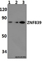 C14orf131 / ZNF839 Antibody - Western blot of ZNF839 polyclonal antibody at 1:500 dilution. Lane 1: H9C2 whole cell lysate (40 ug). Lane 2: RAW264.7 whole cell lysate(40 ug). Lane 3: HeLa whole cell lysate (40 ug).