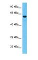 Western blot of CQ074 Antibody with human Stomach Tumor lysate.  This image was taken for the unconjugated form of this product. Other forms have not been tested.