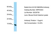 C19orf70 / QIL1 Antibody -  This image was taken for the unconjugated form of this product. Other forms have not been tested.