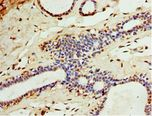 Immunohistochemistry of paraffin-embedded human breast cancer tissue using antibody at 1:100 dilution.
