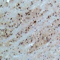 CACNB3 / Cavbeta3 Antibody - Immunohistochemical analysis of CACNB3 staining in rat brain formalin fixed paraffin embedded tissue section. The section was pre-treated using heat mediated antigen retrieval with sodium citrate buffer (pH 6.0). The section was then incubated with the antibody at room temperature and detected using an HRP conjugated compact polymer system. DAB was used as the chromogen. The section was then counterstained with hematoxylin and mounted with DPX.