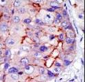 CAMK1D Antibody - Formalin-fixed and paraffin-embedded human cancer tissue reacted with the primary antibody, which was peroxidase-conjugated to the secondary antibody, followed by DAB staining. This data demonstrates the use of this antibody for immunohistochemistry; clinical relevance has not been evaluated. BC = breast carcinoma; HC = hepatocarcinoma.