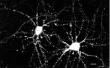 CamKII (22B1), Dissociated hippocampal neurons.  This image was taken for the unconjugated form of this product. Other forms have not been tested.