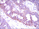 IHC of paraffin-embedded ovarian cancer tissues using CAMK4 mouse monoclonal antibody with DAB staining.