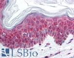 Anti-Calcium Sensing Receptor antibody IHC of human skin. Immunohistochemistry of formalin-fixed, paraffin-embedded tissue after heat-induced antigen retrieval. Antibody LS-B78 concentration 10 ug/ml.  This image was taken for the unconjugated form of this product. Other forms have not been tested.
