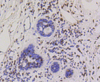 Immunohistochemistry of paraffin-embedded human mammary cancer using CBX5 antibodyat dilution of 1:100 (40x lens).