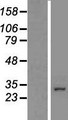 CCDC101 Protein - Western validation with an anti-DDK antibody * L: Control HEK293 lysate R: Over-expression lysate