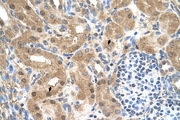 CCDC112 / MBC1 Antibody - CCDC112 antibody ARP44931_T100-NP_001035530-MGC39633 Antibody IHC of formalin-fixed, paraffin-embedded human Kidney. Positive label: Epithelial cells of renal tubule indicated with arrows. Antibody concentration 4-8 ug/ml. Magnification 400X.  This image was taken for the unconjugated form of this product. Other forms have not been tested.