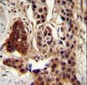 CCDC122 Antibody - CCDC122 antibody immunohistochemistry of formalin-fixed and paraffin-embedded human bladder carcinoma followed by peroxidase-conjugated secondary antibody and DAB staining.