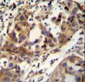 CCDC17 Antibody - CCDC17 antibody immunohistochemistry of formalin-fixed and paraffin-embedded human breast carcinoma followed by peroxidase-conjugated secondary antibody and DAB staining.