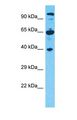 CCDC64 Antibody - Western blot of CCDC64 Antibody with human 293T Whole Cell lysate.  This image was taken for the unconjugated form of this product. Other forms have not been tested.