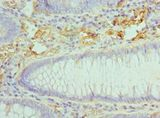 CCL28 / MEC Antibody - Immunohistochemistry of paraffin-embedded human colon cancer using antibody at 1:100 dilution.