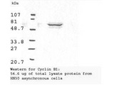 Western blot analysis using Anti-Cyclin B1 antibody shows detection of human Cyclin B1 present in asynchronous HN30 cell lysates. HN30 cells are from head and neck cancer tumors that over express cyclin B1 and D1. Comparison to a molecular weight marker indicates a band of ~62 kD corresponding to the expected molecular weight for the protein (arrowhead). The blot was incubated with a 1:500 dilution of the antibody for 1 h at room temperature. Detection occurred using a 1:10000 of HRP conjugated Goat-a-Rabbit IgG LS-C60865 and chemiluminescence reagent with a 1-min exposure time. Other detection systems will yield similar results.