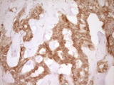 CD40 Antibody - IHC of paraffin-embedded Carcinoma of Human liver tissue using anti-CD40 mouse monoclonal antibody. (Heat-induced epitope retrieval by 1 mM EDTA in 10mM Tris, pH8.5, 120°C for 3min).