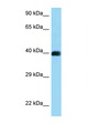 CD72 Antibody - CD72 antibody Western blot of Jurkat Cell lysate. Antibody concentration 1 ug/ml.  This image was taken for the unconjugated form of this product. Other forms have not been tested.