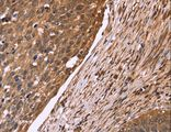 Immunohistochemistry of paraffin-embedded Human cervical cancer using CDC37L1 Polyclonal Antibody at dilution of 1:50.