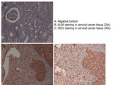Immunohistochemistry with anti-ALG6 antibody showing ALG6 staining in the squamous epithelium of the uterine cervix as well as in inflammatory elements diffused in the stroma of human cervical cancer tissue at 20x and 40x (B & C). Formalin fixed/paraffin embedded sections were subjected to heat induced epitope retrieval (HIER) at pH 6.2 and then incubated with rabbit anti-human ALG6 antibody at 4.0 µg/ml for 60 minutes. The reaction was developed using MACH 1 universal HRP polymer detection system and visualized with 3'3-diamino-benzidine substrate (DAB).
