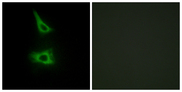 Immunofluorescence analysis of HeLa cells, using CDH17 Antibody. The picture on the right is blocked with the synthesized peptide.