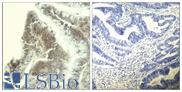 Immunohistochemistry of paraffin-embedded human colon carcinoma tissue using CDK6 (aa11-15) antibody (left) or the same antibody preincubated with blocking peptide (right).