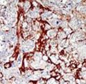 CDKL1 Antibody - Formalin-fixed and paraffin-embedded human cancer tissue reacted with the primary antibody, which was peroxidase-conjugated to the secondary antibody, followed by DAB staining. This data demonstrates the use of this antibody for immunohistochemistry; clinical relevance has not been evaluated. BC = breast carcinoma; HC = hepatocarcinoma.