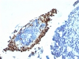 Formalin-fixed, paraffin-embedded bladder carcinoma stained with p21 antibody (HJ21).  This image was taken for the unmodified form of this product. Other forms have not been tested.