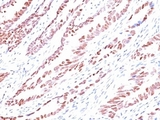 Formalin-fixed, paraffin-embedded human colon carcinoma stained with p57 antibody (KP10).  This image was taken for the unmodified form of this product. Other forms have not been tested.