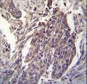 CDKN2B Antibody immunohistochemistry of formalin-fixed and paraffin-embedded human lung carcinoma followed by peroxidase-conjugated secondary antibody and DAB staining.
