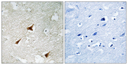 Immunohistochemistry analysis of paraffin-embedded human brain, using p19 INK4d Antibody. The picture on the right is blocked with the synthesized peptide.