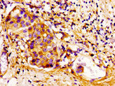 CDKN3 / KAP Antibody - Immunohistochemistry image of paraffin-embedded human breast cancer at a dilution of 1:100