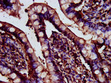 Immunohistochemistry image at a dilution of 1:200 and staining in paraffin-embedded human small intestine tissue performed on a Leica BondTM system. After dewaxing and hydration, antigen retrieval was mediated by high pressure in a citrate buffer (pH 6.0) . Section was blocked with 10% normal goat serum 30min at RT. Then primary antibody (1% BSA) was incubated at 4 °C overnight. The primary is detected by a biotinylated secondary antibody and visualized using an HRP conjugated SP system.