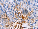 Immunohistochemistry of paraffin-embedded Human esophagus cancer using IL18R1 Polyclonal Antibody at dilution of 1:25.