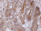 CEACAM5 / CD66e Antibody - Immunohistochemistry staining of colorectal carcinoma (paraffin-embedded sections) with anti-human CD66e (CB30).  Primary antibody dilution: 10 µg/ml.