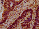 CEB1 / HERC5 Antibody - Immunohistochemistry Dilution at 1:100 and staining in paraffin-embedded human ovarian cancer performed on a Leica BondTM system. After dewaxing and hydration, antigen retrieval was mediated by high pressure in a citrate buffer (pH 6.0). Section was blocked with 10% normal Goat serum 30min at RT. Then primary antibody (1% BSA) was incubated at 4°C overnight. The primary is detected by a biotinylated Secondary antibody and visualized using an HRP conjugated SP system.