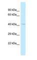 CENTG2 / AGAP1 Antibody - CENTG2 / AGAP1 antibody Western Blot of NCI-H226. Antibody dilution: 1 ug/ml.  This image was taken for the unconjugated form of this product. Other forms have not been tested.