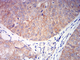 Immunohistochemical analysis of paraffin-embedded bladder cancer tissues using CHRNA6 mouse mAb with DAB staining.