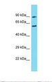 CIRH1A Antibody - Western blot of Human 721_B. CIRH1A antibody dilution 1.0 ug/ml.  This image was taken for the unconjugated form of this product. Other forms have not been tested.