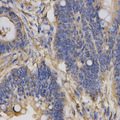 Immunohistochemistry of paraffin-embedded human rectal cancer using CLCN5 antibody at dilution of 1:200 (x400 lens)