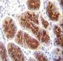 CLDN2 Antibody (C-term Y224) immunohistochemistry of formalin-fixed and paraffin-embedded human stomach tissue followed by peroxidase-conjugated secondary antibody and DAB staining.