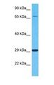 CLIC2 Antibody - Western blot of CLIC2 Antibody with human Fetal Liver lysate.  This image was taken for the unconjugated form of this product. Other forms have not been tested.