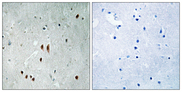 Immunohistochemistry analysis of paraffin-embedded human brain, using CNOT2 (Phospho-Ser101) Antibody. The picture on the right is blocked with the phospho peptide.
