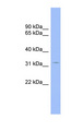 CNOT7 antibody Western blot of Placenta lysate. This image was taken for the unconjugated form of this product. Other forms have not been tested.