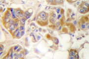 IHC of Collagen I (S3) pAb in paraffin-embedded human breast carcinoma tissue.
