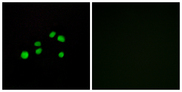Immunofluorescence analysis of HepG2 cells, using Collagen XXIII alpha1 Antibody. The picture on the right is blocked with the synthesized peptide.