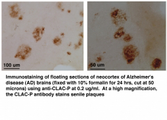 COL25A1 / Collagen XXV Antibody - Positive staining of senile plaques in AD brains.