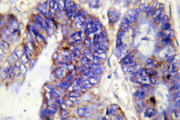 IHC of COL4A2 (P175) pAb in paraffin-embedded human colon carcinoma tissue.