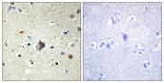 COL4A3 / Tumstatin Antibody - Immunohistochemistry analysis of paraffin-embedded human brain tissue, using Collagen IV alpha3 Antibody. The picture on the right is blocked with the synthesized peptide.