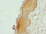 Immunohistochemistry of paraffin-embedded human skin tissue at dilution 1:100