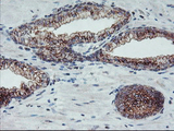 IHC of paraffin-embedded Carcinoma of Human prostate tissue using anti-ARCN1 mouse monoclonal antibody.