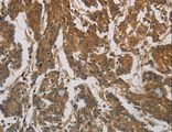 Immunohistochemistry of paraffin-embedded Human colon cancer using CORO1C Polyclonal Antibody at dilution of 1:60.